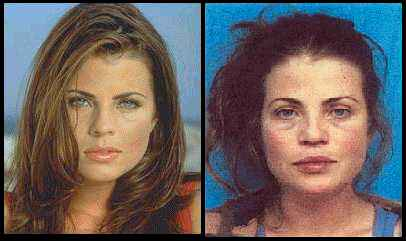 Celebrities Before & After Addiction Took Over Their Lives