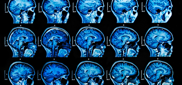 Technologies That Can Help Diagnose Brain Diseases